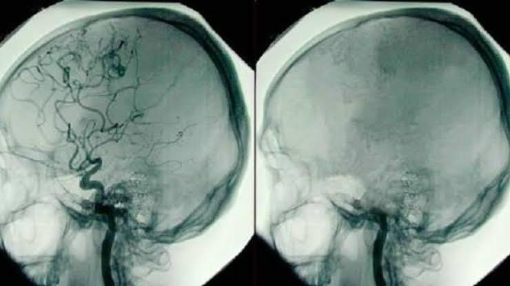 Muerte cerebral y muerte personal